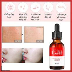 serum red c