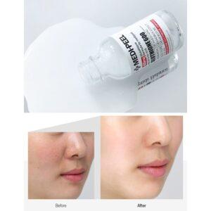 phản hồi của khách hàng khi sử dụng serum medi peel