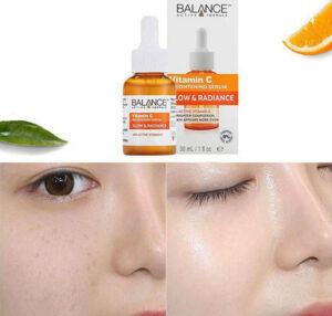 Serum balance vitamin c chính hãng- Anh
